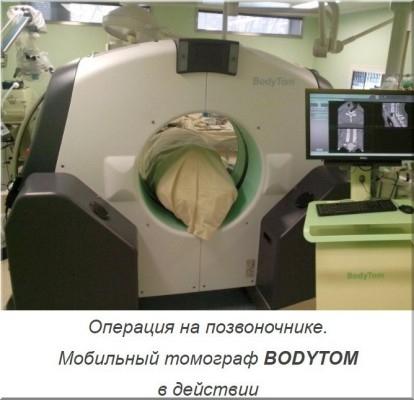 Мобильный томограф BODYTOM