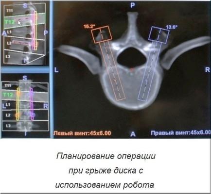 планирование роботизированной операции